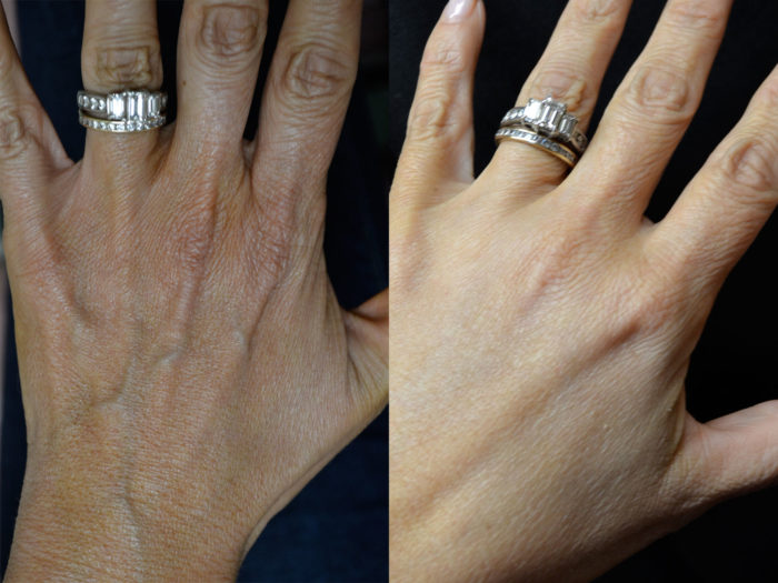 hand-rejuvenation-1b-e1477751750636